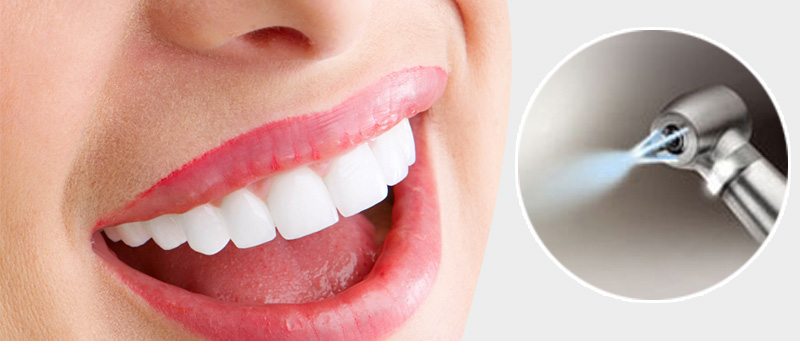 phuket dental, dental phuket, phuket dentist, phuket dental airflow teeth cleaning, patong dentist