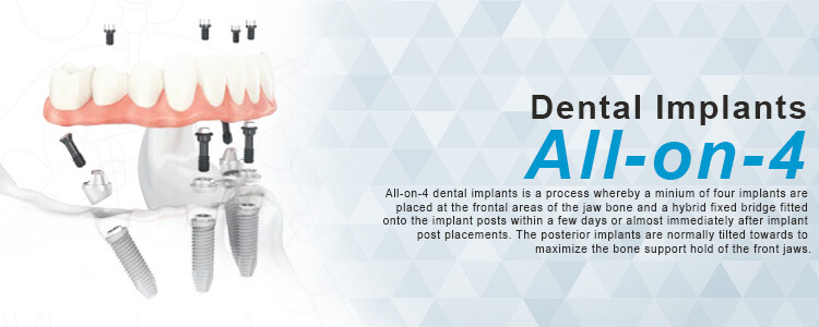 phuket dental, dental phuket, patong dental, phuket dental in thailand, dental implant center, all-on-4 implant