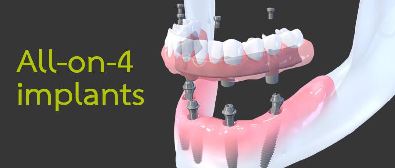 phuket dental, dental phuket, phuket dentist, implant center, all on 4 phuket