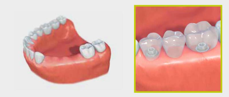 puhket dental, phuket dentist, dental phuket, dental bridges, phuket dental center