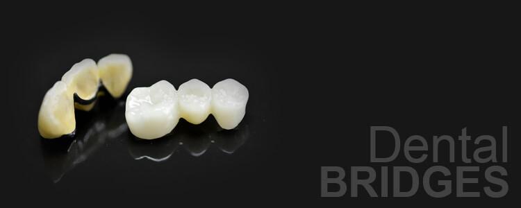 phuket dental, dental phuket, patong dental, dental bridge, dental bridge center