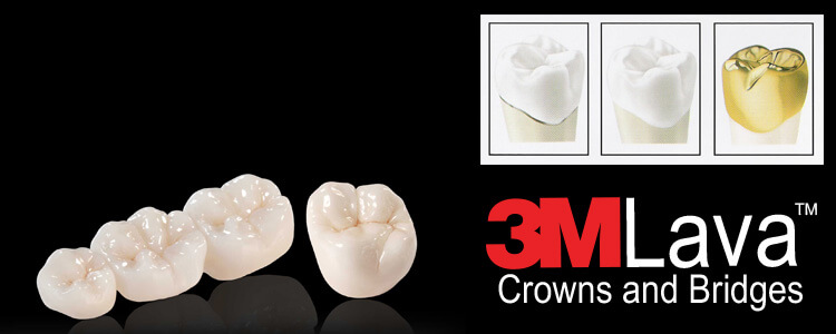 phuket dental, dental phuket, patong dental, phuket dental in thailand, dental crowns, dental crown center