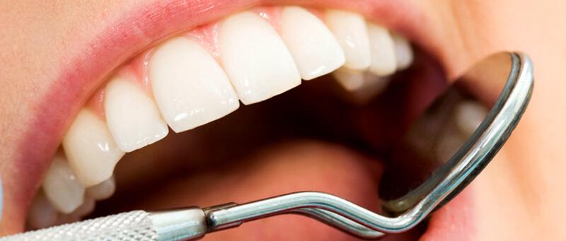 phuket dental, dental phuket, patong dental, dental fillings