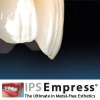phuket dental, dental phuket, patong dental, phuket dental in thailand, dental veneers, ips empress veneers