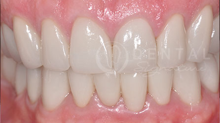 Crowns Dental Case Gallery