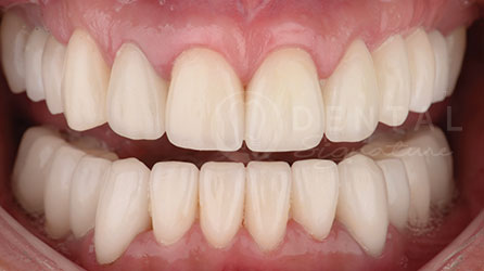 Dental Implant Case Gallery