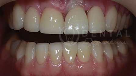 All-on-4 Implant Case Gallery