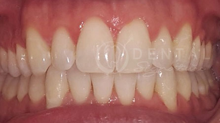 Invisalign Braces Dental Case Gallery
