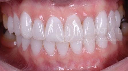 Veneers Dental Cases Gallery