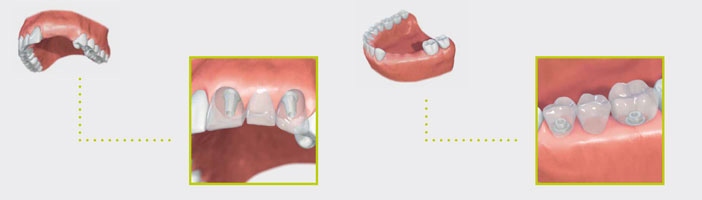 phuket dental, dental phuket, patong dental, phuket dental in thailand, dental implant, implant center