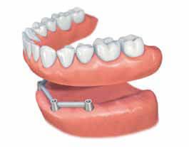 phuket dental, dental phuket, patong dental, phuket dental in thailand, implant center, dental implants