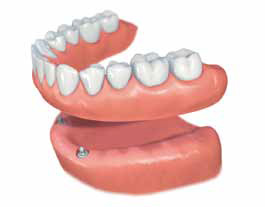 phuket dental, dental phuket, patong dental, phuket dental in thailand, dental implants, implant center