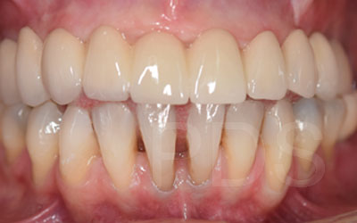 Upper Dental Implant Bridge