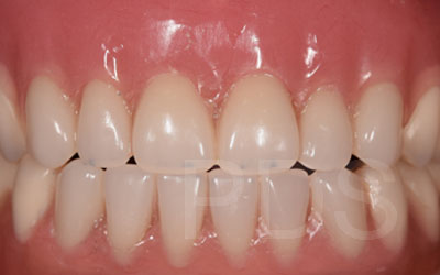 Upper & Lower Dental Implant Dentures