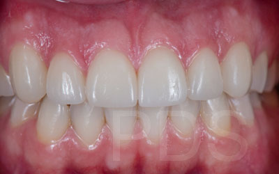Full Upper Lower Veneers
